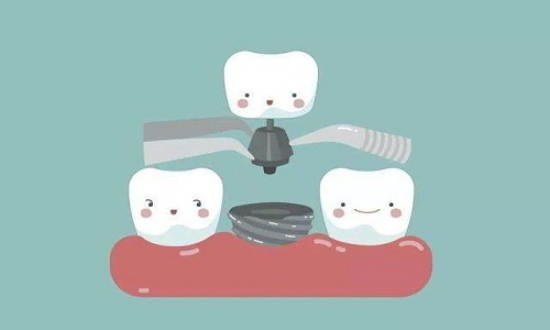 How long is the life of dental implants
