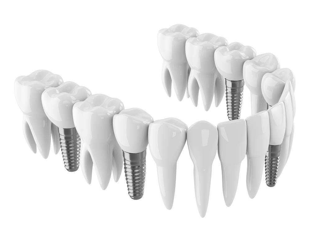 種植牙和鑲牙哪個好