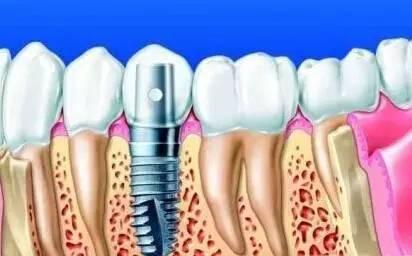 牙齒缺失為什麼首選種植牙